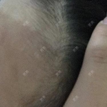 激光脱面部其他毛发