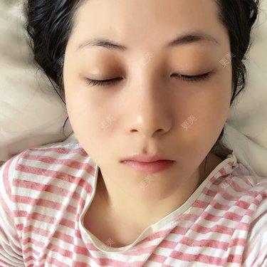 suriyoung