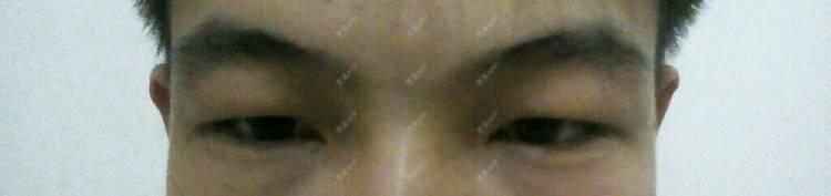 更美 - 更美用户94ZuDQYdPX的日记 | 肿眼泡 | 广州 | 吸脂祛眼袋 | 溶脂去眼袋