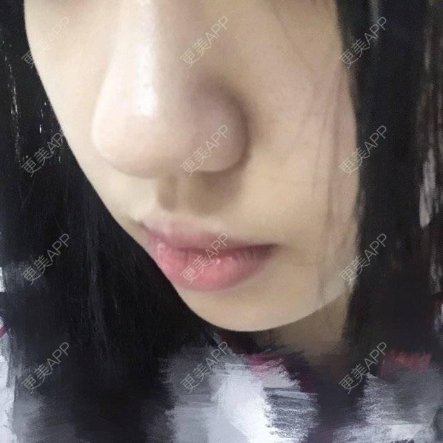 更美 - i3xx🖤的日记 | 鼻翼缩小 | 广州