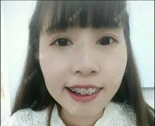 更美 - 始终不够爱你的托槽牙齿矫正日记 | 广州 | 托槽牙齿矫正