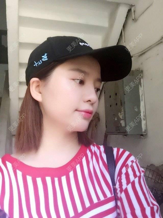 更美 - 唯艺妮子的玻尿酸丰下巴日记 | 注射美容 | 玻尿酸丰下巴 | 上海 | 瘦脸针