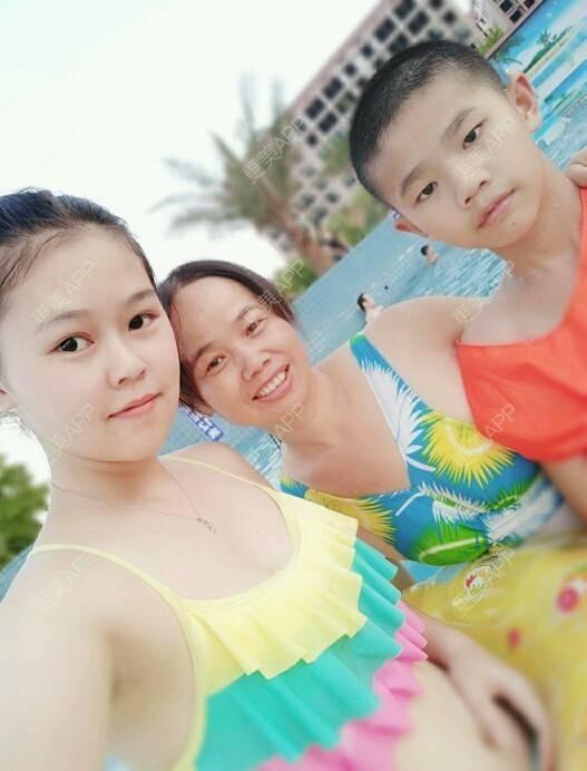 更美 - 晴天sun711的双眼皮日记 | 北京 | 免费面部吸脂 | 双眼皮
