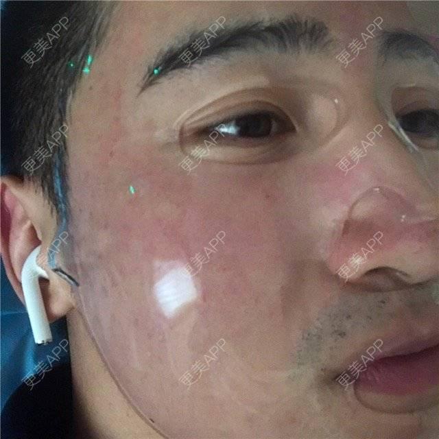 更美 - 陈八哥的微针祛痘坑日记 | 上海 | 微针祛痘坑