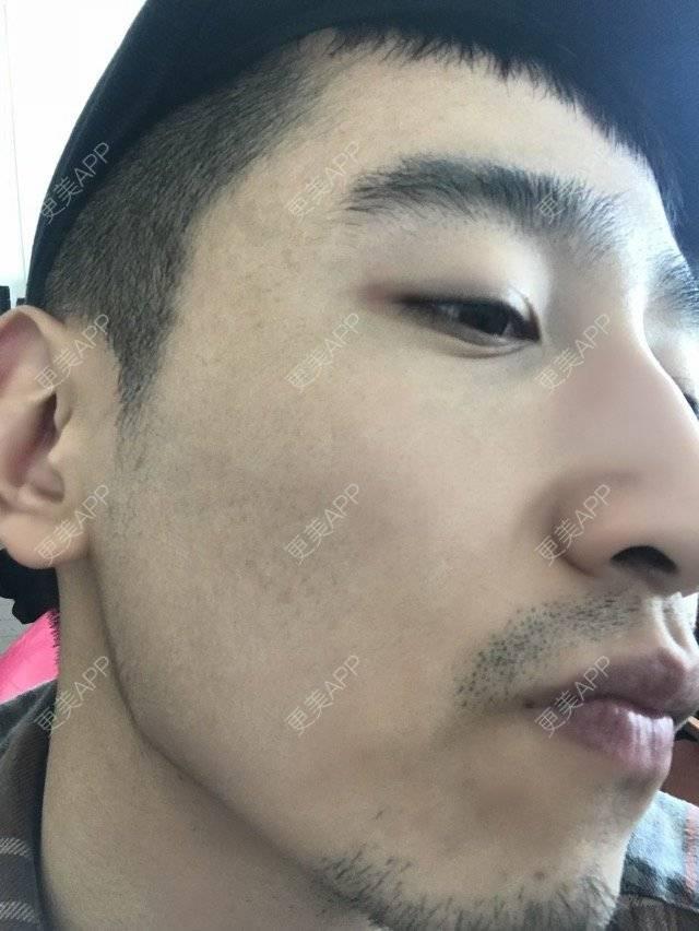 更美 - 陈八哥的微针祛痘坑日记   上海   微针祛痘坑