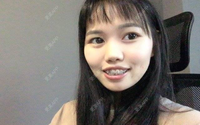 更美 - 妮可酱的托槽牙齿矫正日记   广州   托槽牙齿矫正