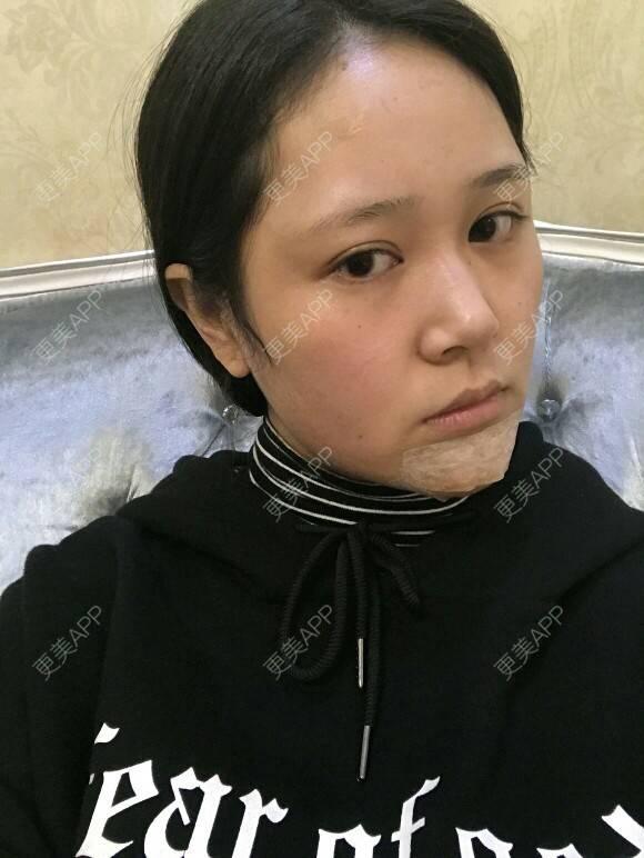 更美 - 瑞卡的硅胶垫下巴日记 | 武汉 | 硅胶垫下巴