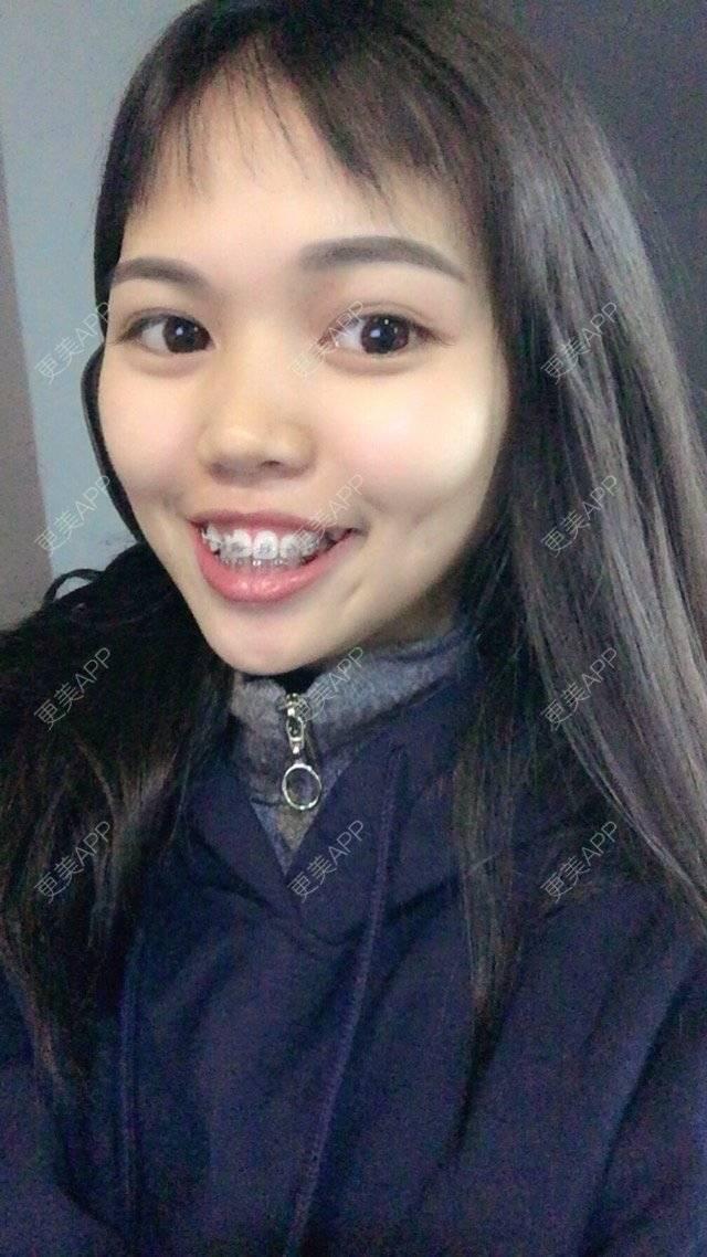 更美 - 妮可酱的托槽牙齿矫正日记 | 广州 | 托槽牙齿矫正 | 牙齿美容 | 牙齿矫正
