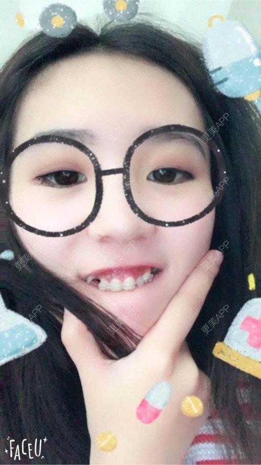 更美 - 更美用户qk1GNGOJvt的牙齿矫正日记 | 郑州 | 牙齿矫正
