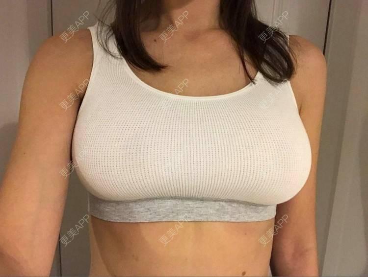 更美 - 斯维特拉娜的假体隆胸日记   成都   视频日记   假体隆胸