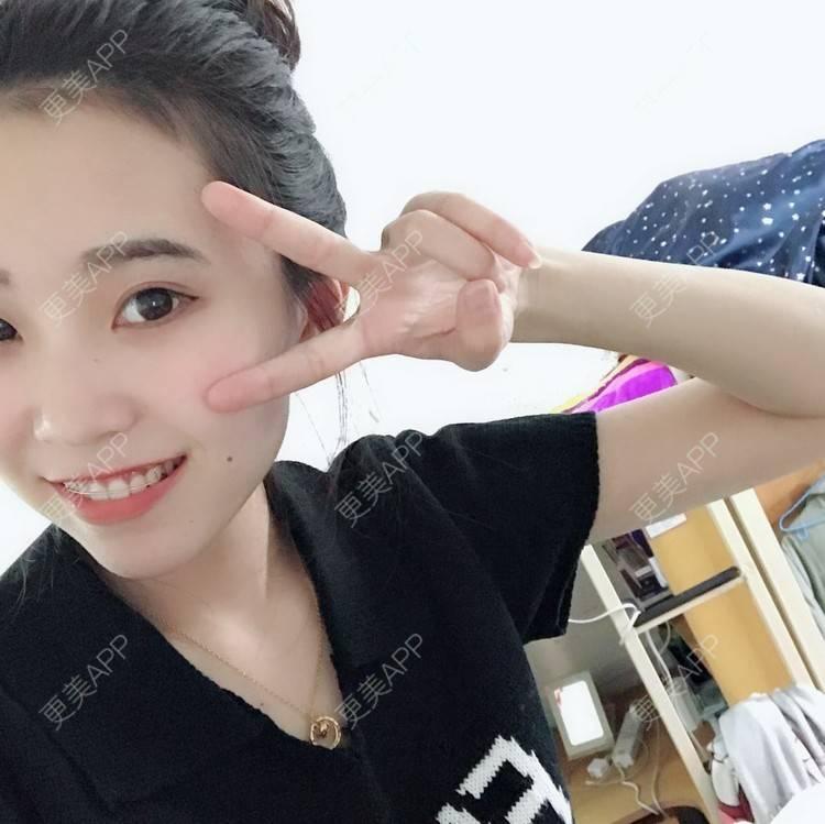 更美 - 更美用户qk1GNGOJvt的牙齿矫正日记 | 郑州 | 牙齿矫正 | 视频日记