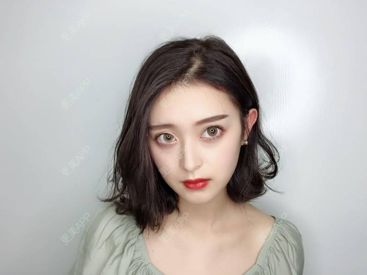 更美 - F姐姐的玻尿酸丰下巴日记 | 广州 | 玻尿酸丰下巴