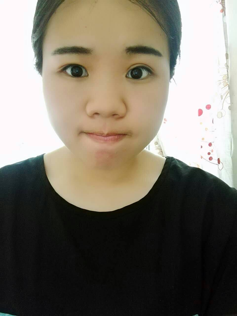 八大处整形外科医院刘伟怎么样?双眼皮案例反馈_收费标准