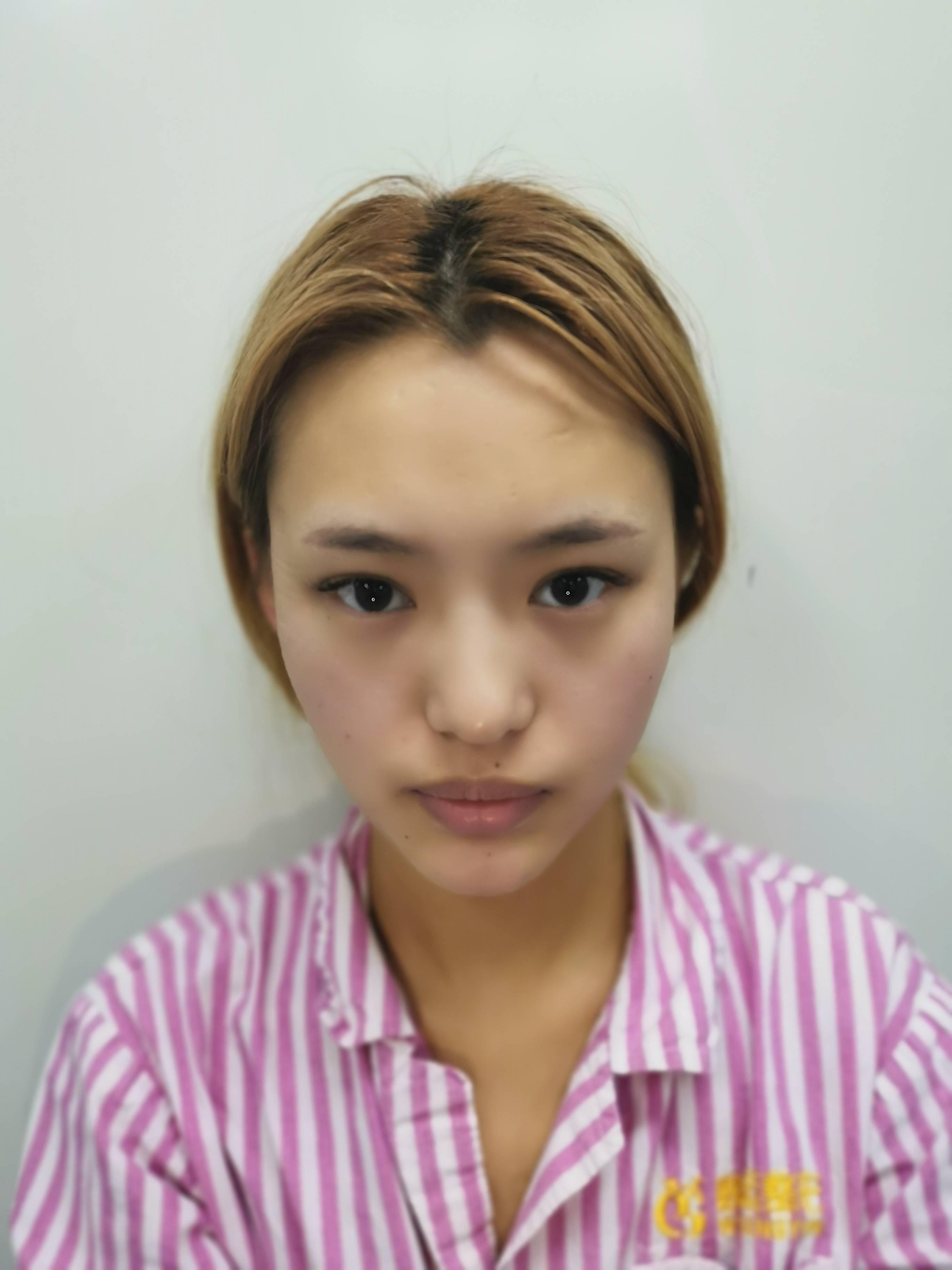 八大处找张超做磨骨靠谱吗?隆鼻术前术后对比图