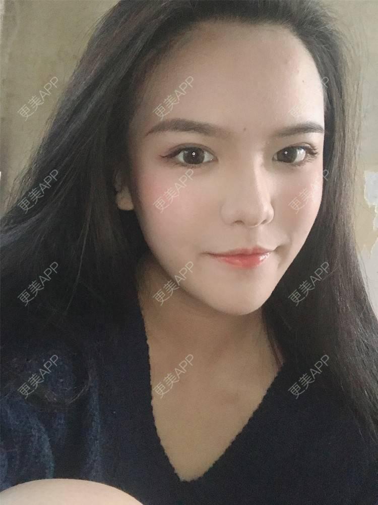 更美 - 更美用戶X4LuQyEyHb的眼綜合日記 | 北京 | 眼綜合 | 視頻日記