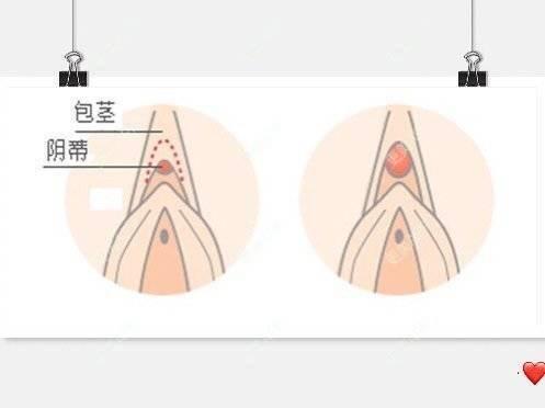 更美 - 侯智慧的阴蒂提升日记 | 更美研究所 | 北京 | 阴蒂提升