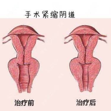 侯智慧 医生