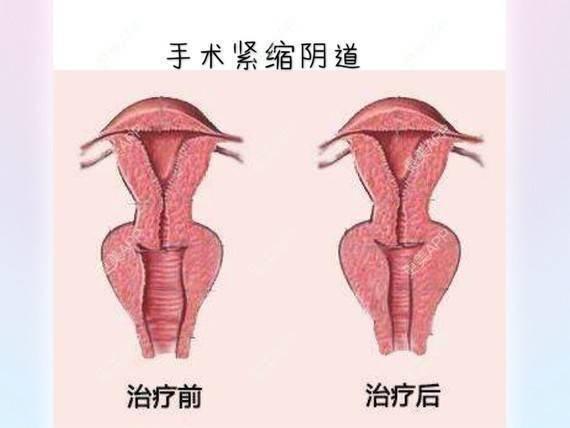 更美 - 侯智慧的阴道紧缩日记 | 更美研究所 | 阴道紧缩 | 北京