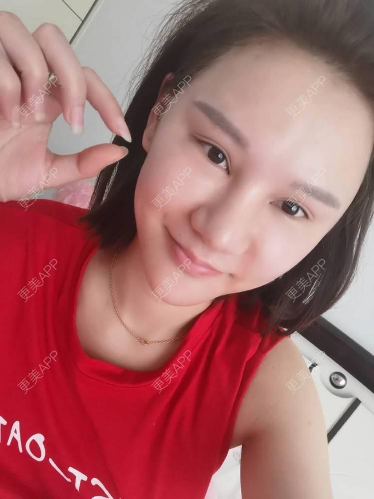 更美 - 上海爱度医疗美容门诊部的硅胶隆鼻日记   耳软骨隆鼻   硅胶隆鼻   隆鼻   鼻中隔软骨隆鼻
