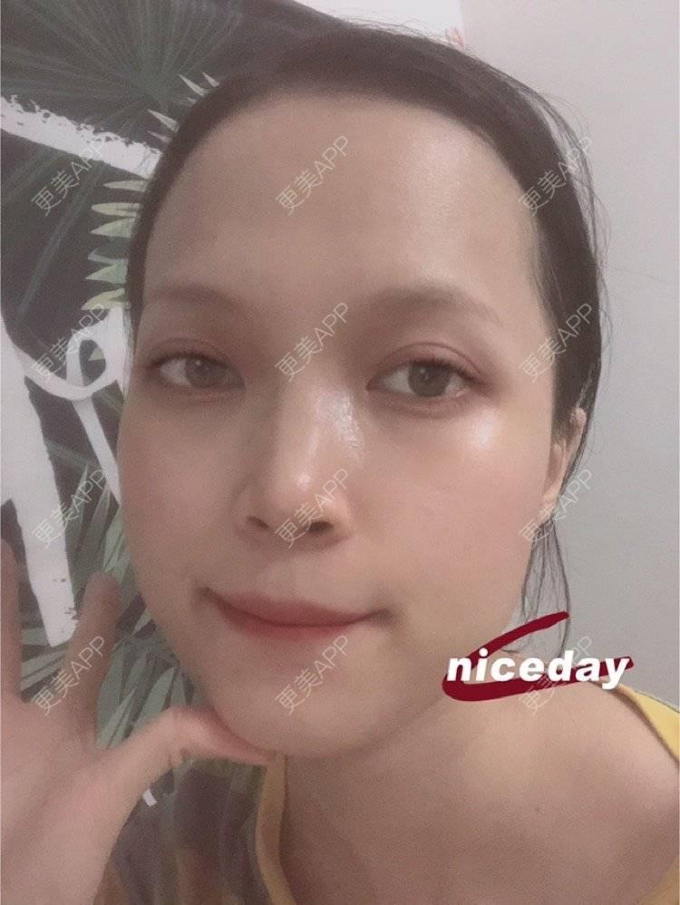 更美 - 更美用户NpS93HK67Y的双眼皮日记   广州   双眼皮