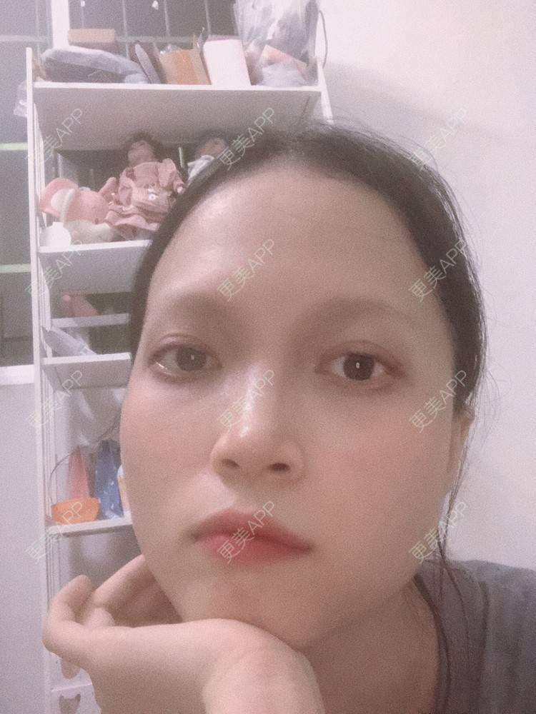 更美 - 更美用户NpS93HK67Y的双眼皮日记 | 广州 | 双眼皮