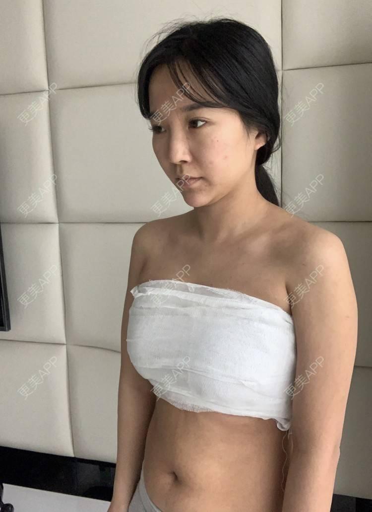更美 - 更美用户bdmoHq0Aa0的假体隆胸日记 | 假体隆胸