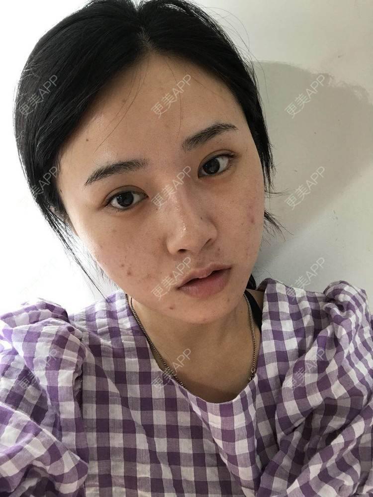 更美 - 更美用户AW5ZRyRynC的注射瘦脸日记   Fotona   注射瘦脸   西安   射频提升