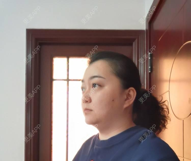 更美 - 更美用户ID74FSnd7S的颈部日记 | 热玛吉 | 颈部 | 除皱 | 重庆 | 超声提升 | 埋线除皱 | 射频提升 | 热拉提 | 肤质检测 | 皮肤综合管理套餐 | 除皱套餐